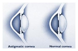 astigmatismcorrec